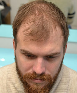 przed zagęszczaniem włosów