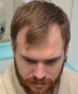 po zagęszczaniu włosów